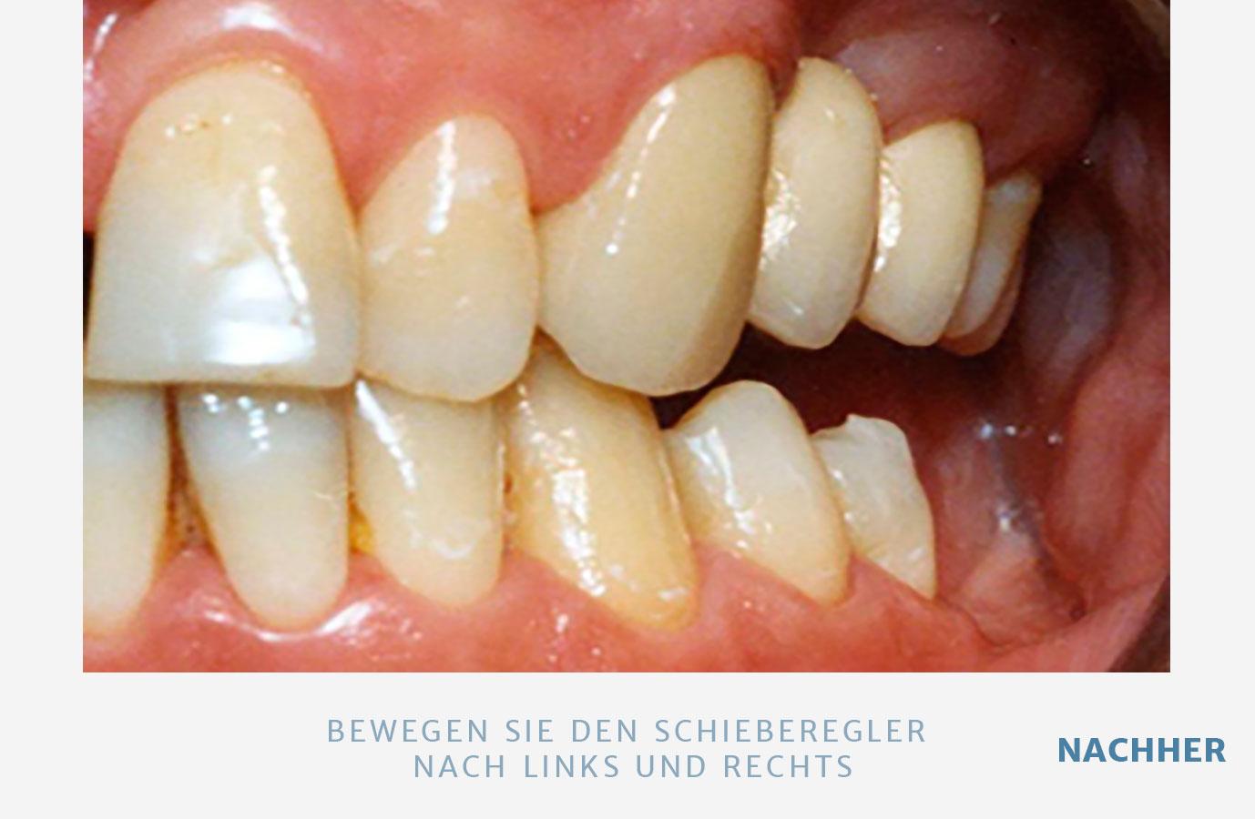 4-1-2-1-bruecken-n