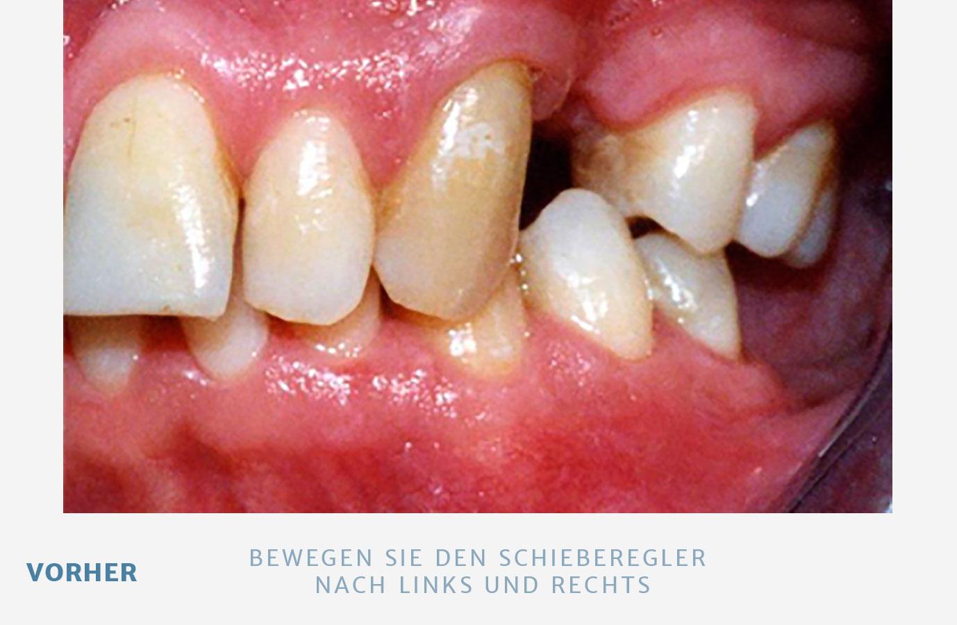 4-1-2-1-bruecken-neu-v