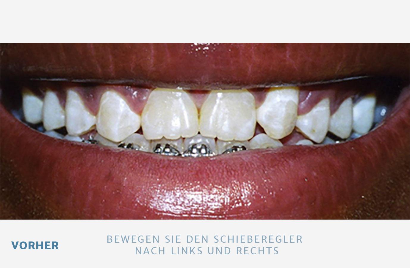 Formveränderung von Zähnen
